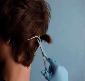 Prawidłowy pobór włosów